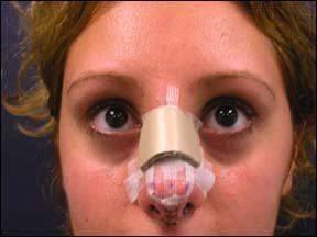 Реабилитация после септопластики носа