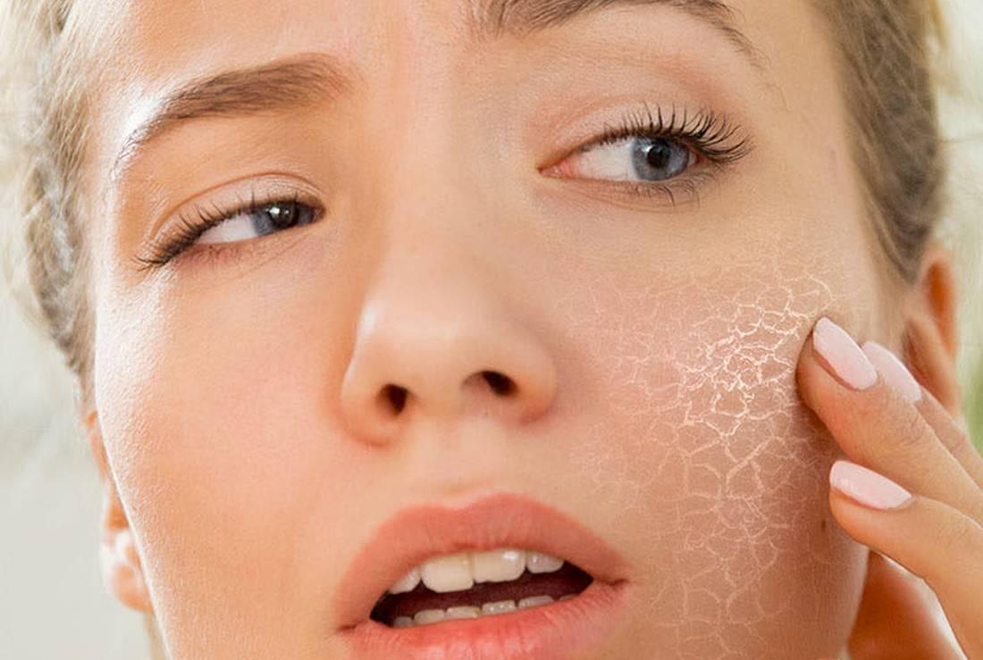 Как ухаживать за жирной кожей летом