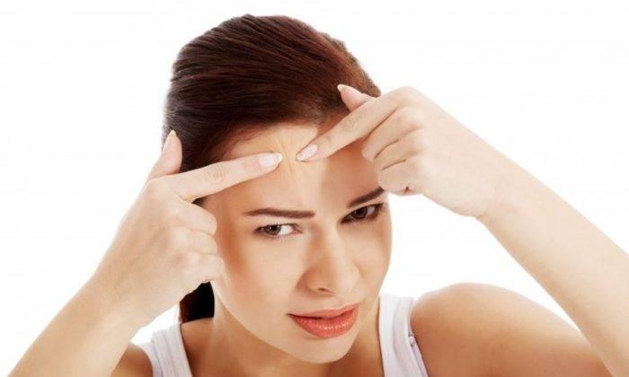 Причины появления прыщей перед менструацией и их лечение