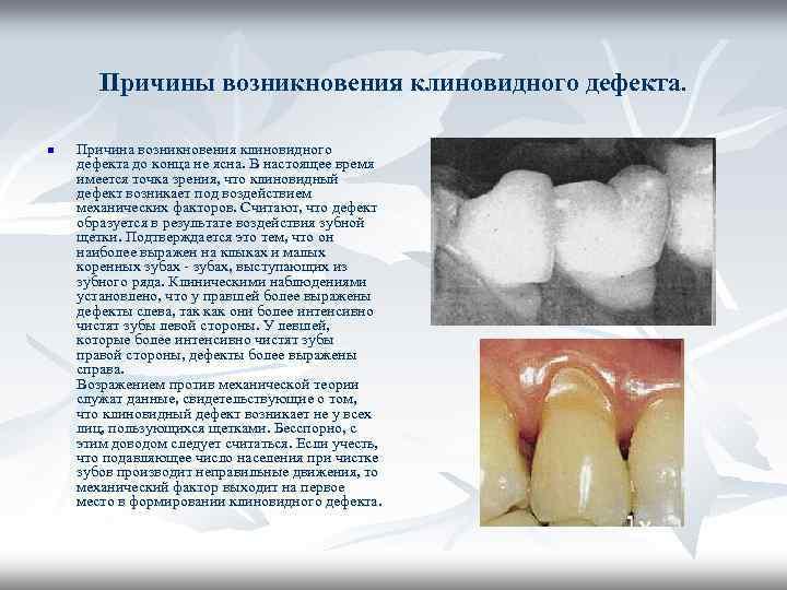 Признаки и способы устранения клиновидного дефекта зубов