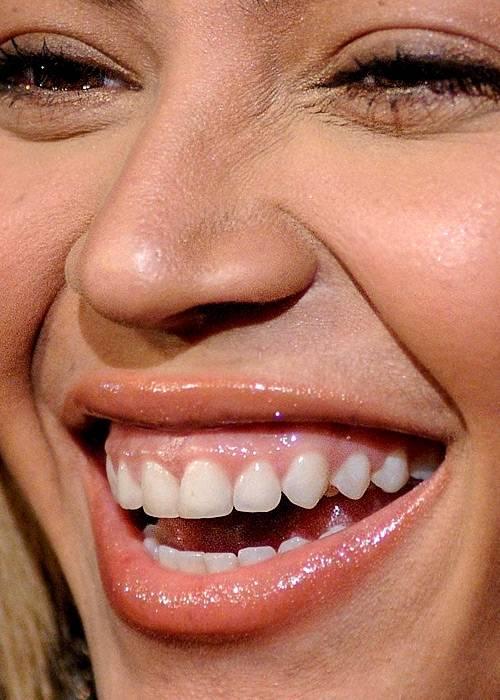 Красивые зубы: как достичь желаемого результата?
