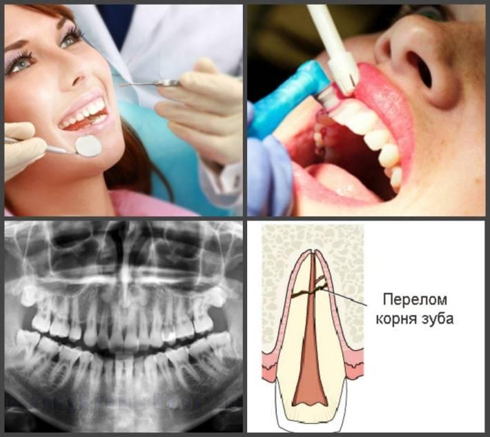 Начали шататься зубы как убрать шаткость зубов?