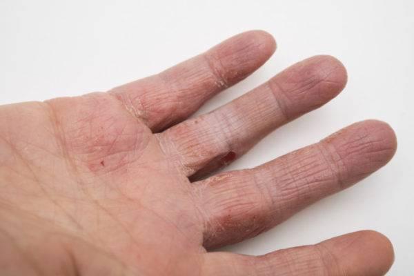 Мокнущая экзема на руках и ногах