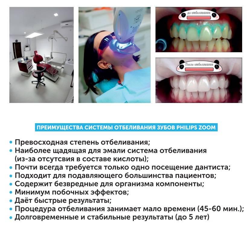 Система zoom для отбеливания зубов – что это такое и сколько она стоит?