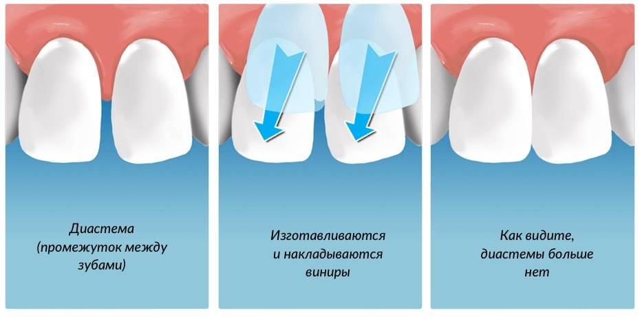 Вся правда о керамических накладках на зубы