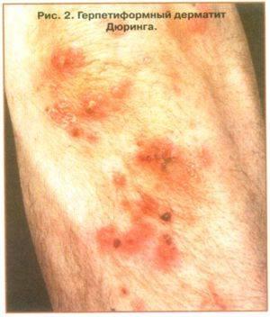 Пузырчатый дерматит у ребенка лечение