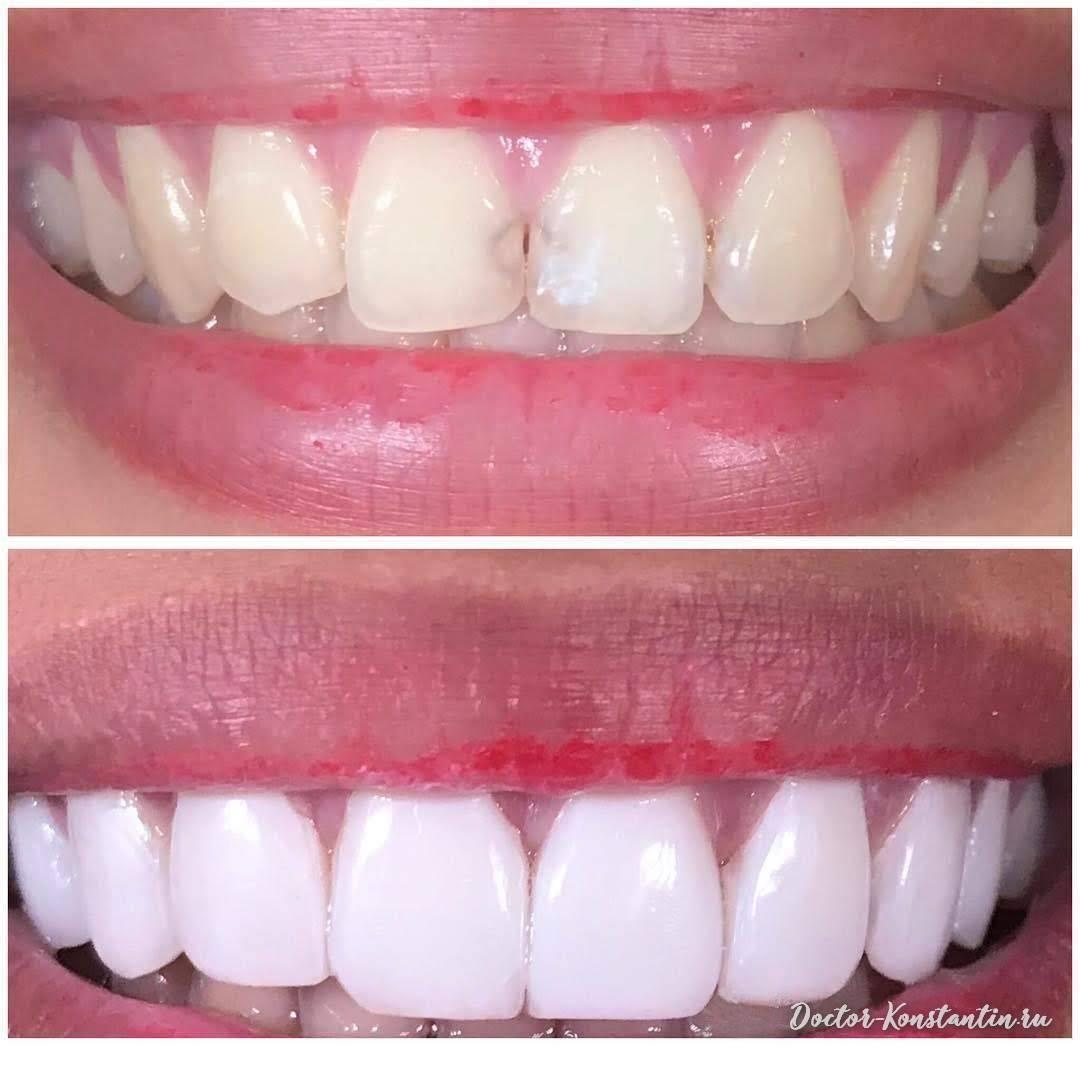 Что такое композитные зубные виниры и компониры, как проходит процесс реставрации с фото до и после?