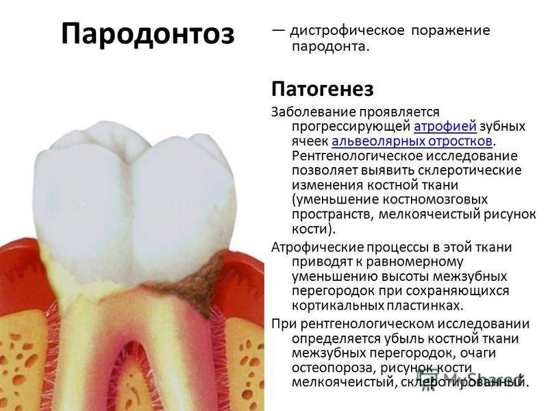 Степени пародонтита: классификация по форме и тяжести
