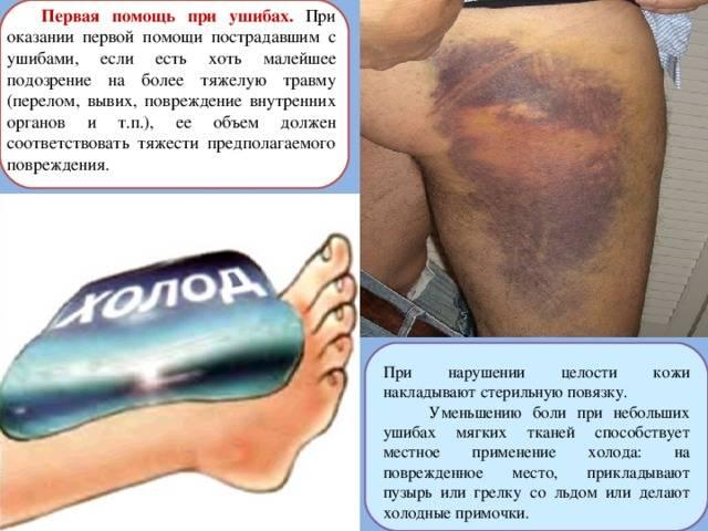 Виды и особенности лечения посттравматических гематом на ноге
