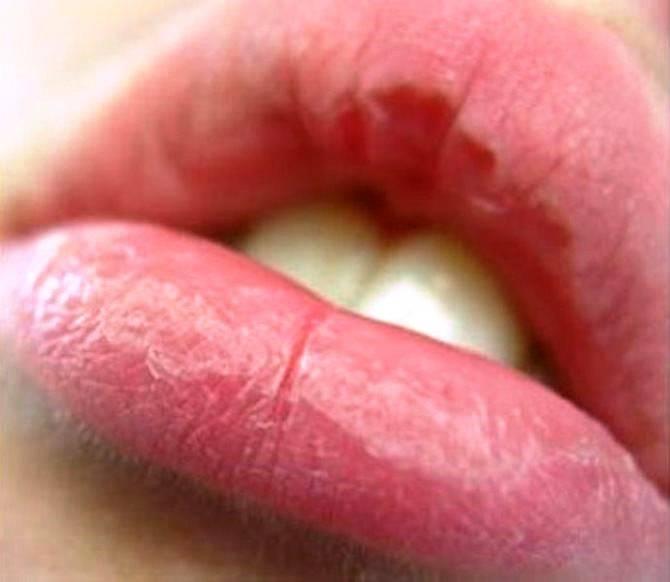 Сохнут губы причина у женщин как лечить