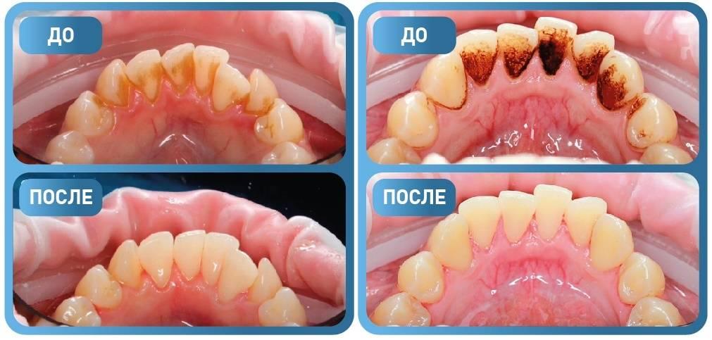 Особенности профессиональной гигиены полости рта. какие методы включает в себя?