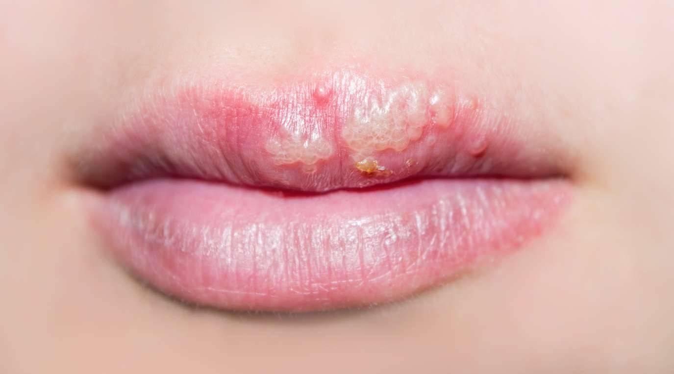 Молочница во рту у взрослых: фото, симптомы, причины, диагностика, лечение препаратами и народными средствами. обследование и лечение молочницы (кандидоза) во рту у взрослых: к какому врачу обращаться?