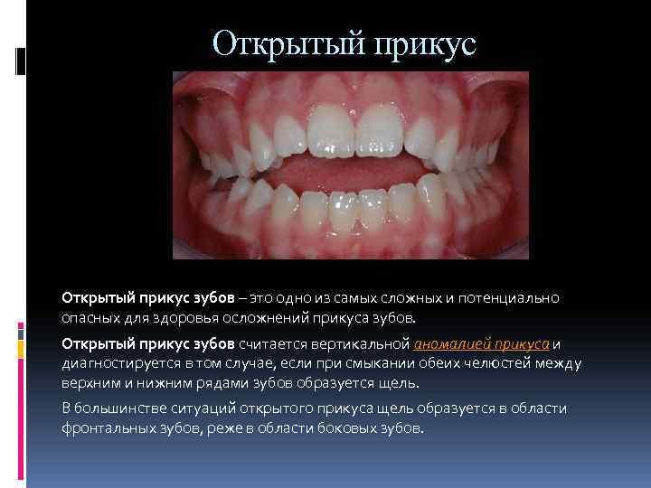 Удаление дистопированного и ретинированного зуба мудрости или клыка: фото и показания к лечению
