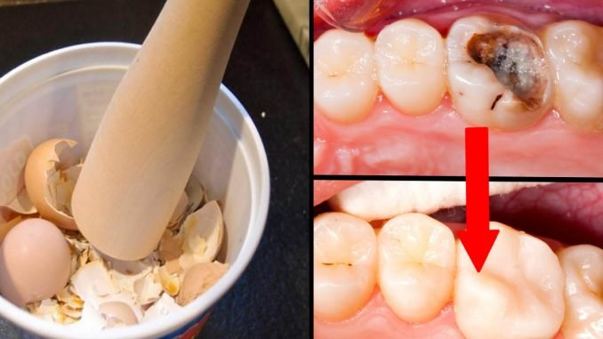 Кариес на передних зубах и его лечение