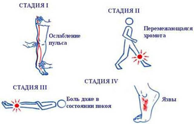 Чем лечить трофические язвы на ногах: причины возникновения, препараты, методы лечения