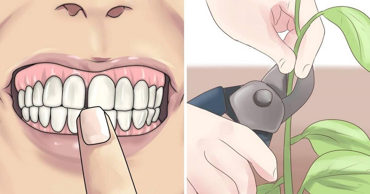 Эффективное лечение гингивита в домашних условиях