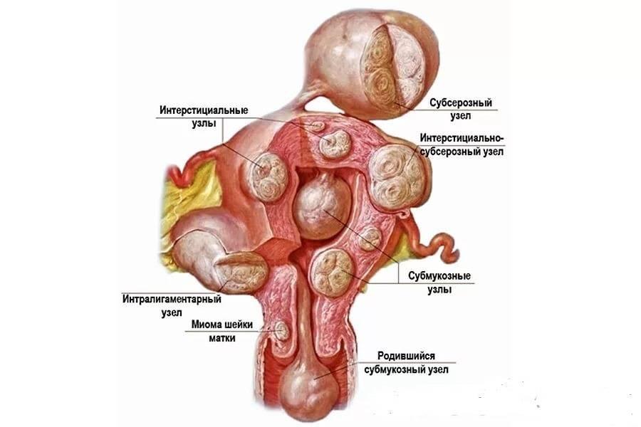 Беременность при миоме матки