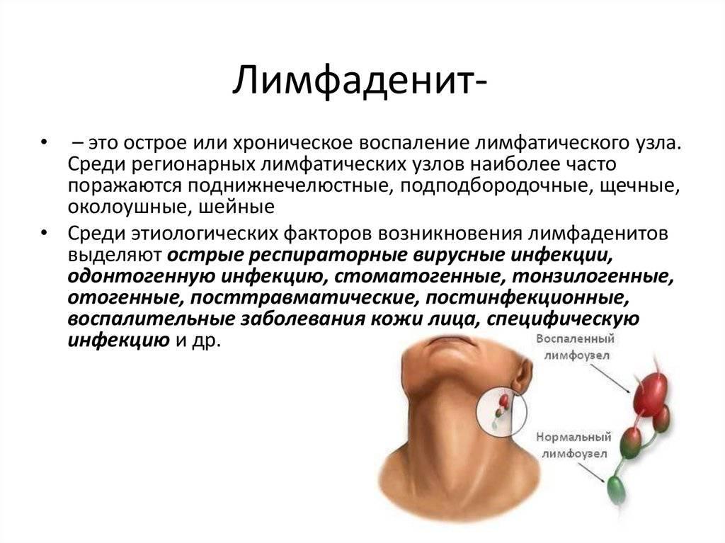 Лимфоузел за ухом
