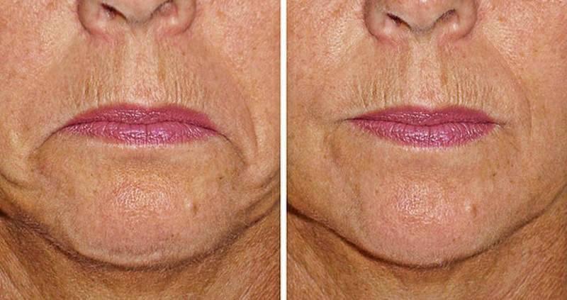 Применение ботокса в косметологии: тонкости процедуры увеличения губ