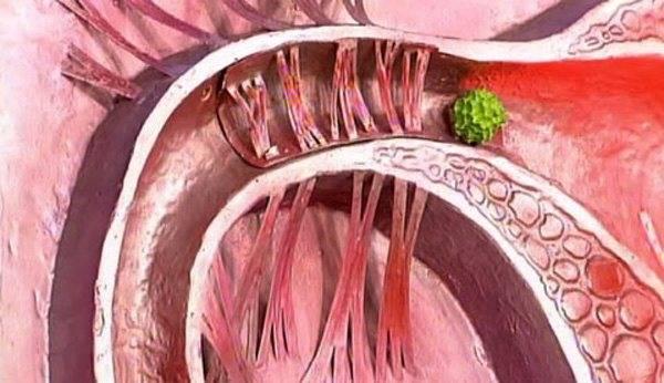Спаечная болезнь кишечника: что это такое и как с этим бороться