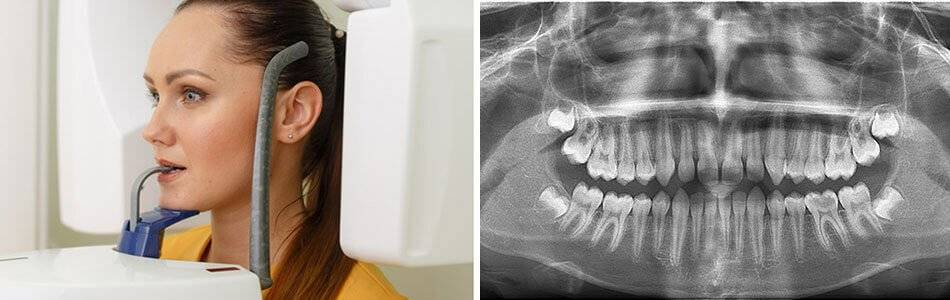 Рентген зуба — виды и расшифровка. как часто можно делать рентген и что он показывает