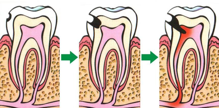 Почему после лечения кариеса болит зуб: это норма или нет, что нужно делать?