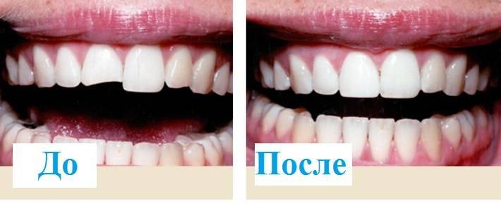 Что такое подпиливание зубов и зачем проводят данную процедуру