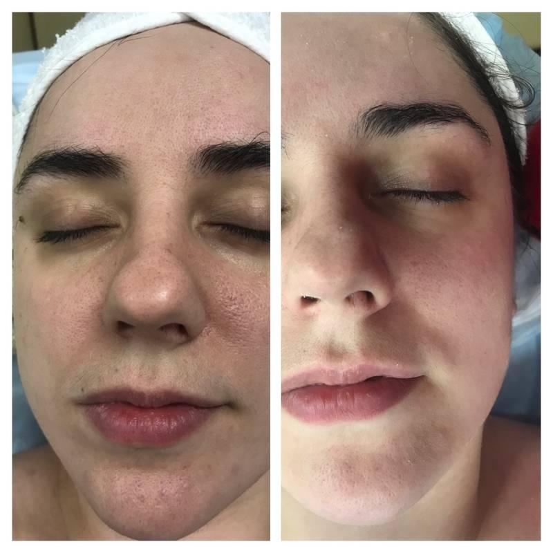 Атравматическая чистка лица: что это такое и какие особенности у процедуры