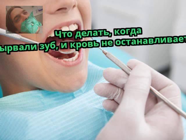 Что делать, если после удаления зуба не прекращается кровотечение?