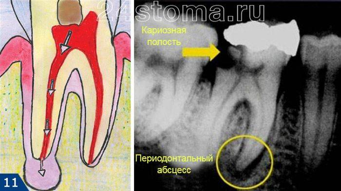 Признаки апикального периодонтита и лечение заболевания