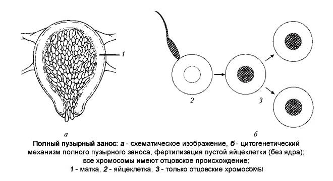 Пузырный занос