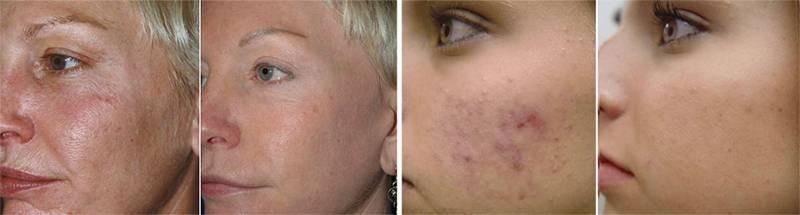 Как восстановить лицо после мезотерапии – рекомендации от врачей косметологов