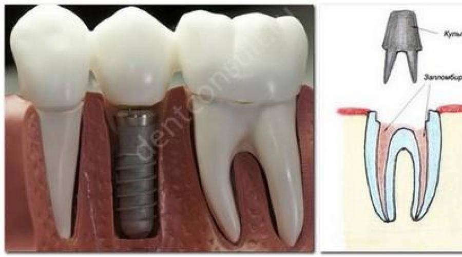 Какие вставные зубы лучше