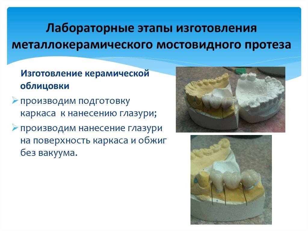 Ортопедическое лечение частичного отсутствия зубов цельнолитыми и металлокерамическими мостовидными протезами - презентация