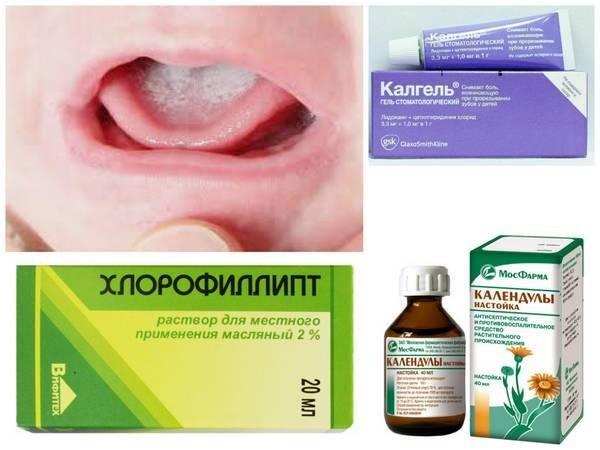 Таблетки от стоматита во рту у взрослых и детей