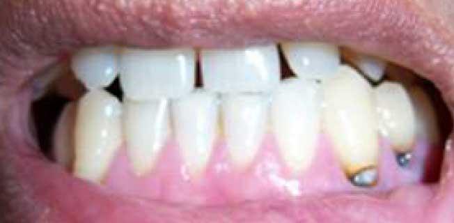 Кариес корня зуба
