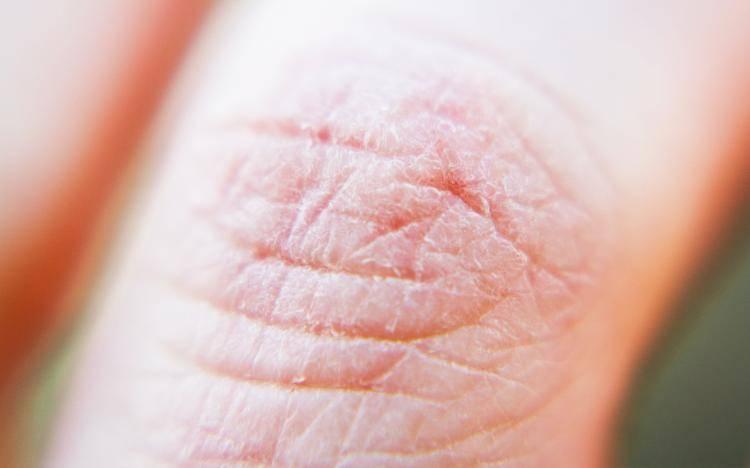 Сохнет и трескается кожа на руках: фото, заболевания, лечение