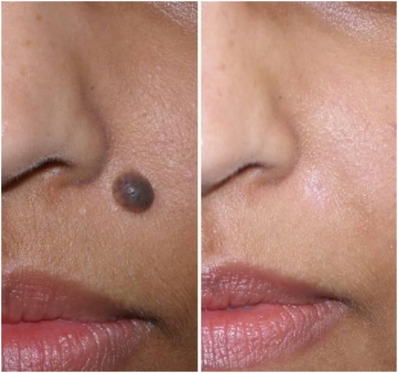 Как убрать родимое пятно с лица?