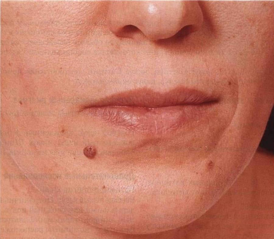 Эффективное удаление бородавок на коже лица
