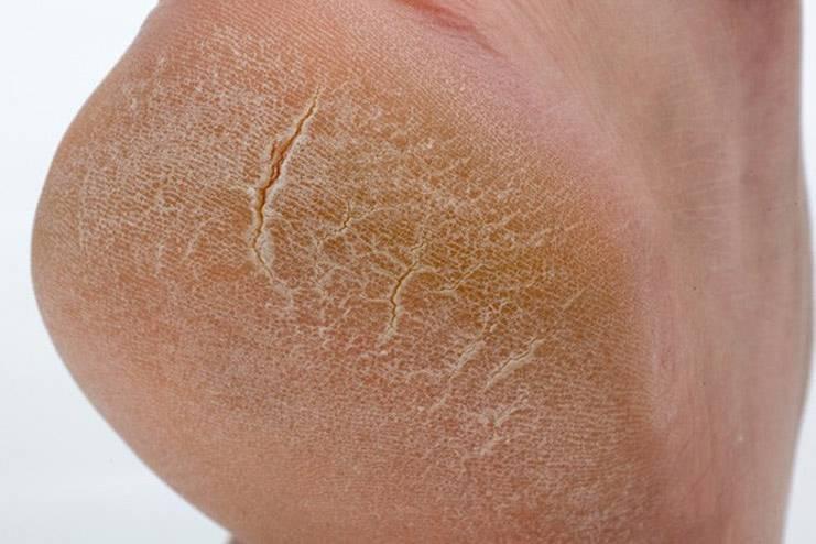 Сухая, темная и шершавая кожа на локтях: это что? причины и лечение