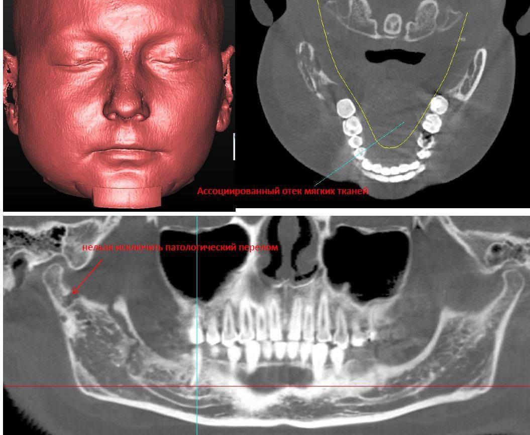 Остеонекроз челюсти: что это такое, каковы его симптомы и методы лечения?