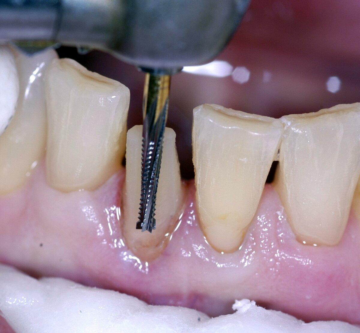 Можно ли поставить виниры без обточки зубов