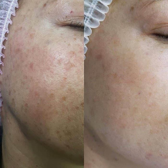 Удаление пигментных пятен на лице лазером: отзывы, фото