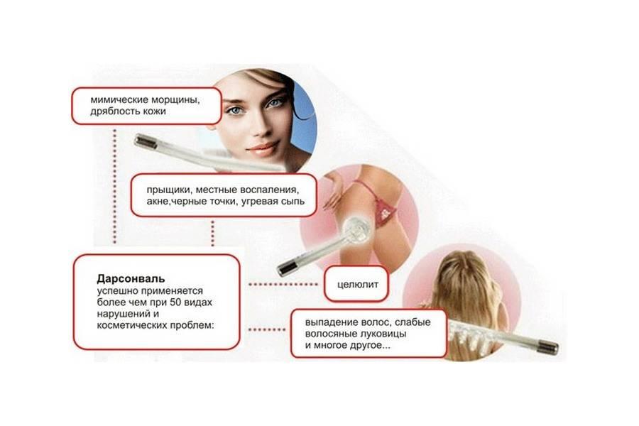 Дарсонваль для волос как правильно пользоваться