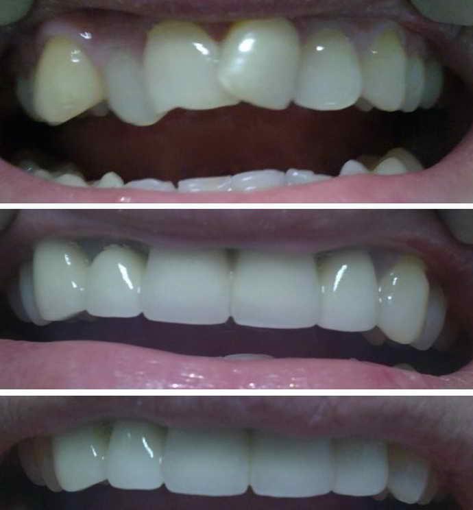 Установка виниров на кривые зубы — альтернатива брекетам