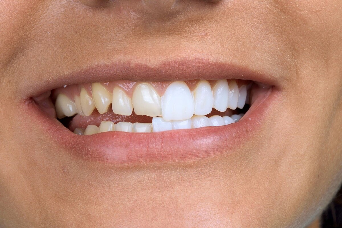 Как проводится удаление клыка верхней челюсти