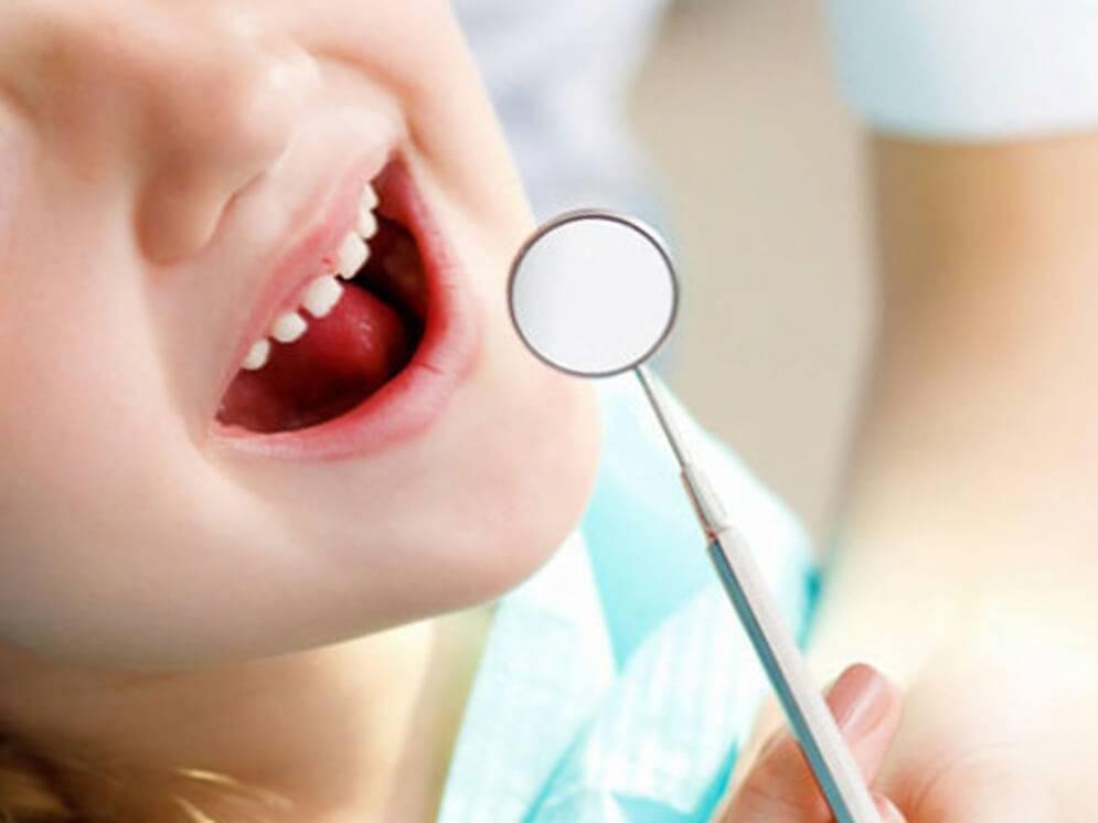 Особенности лечения кариеса молочных зубов