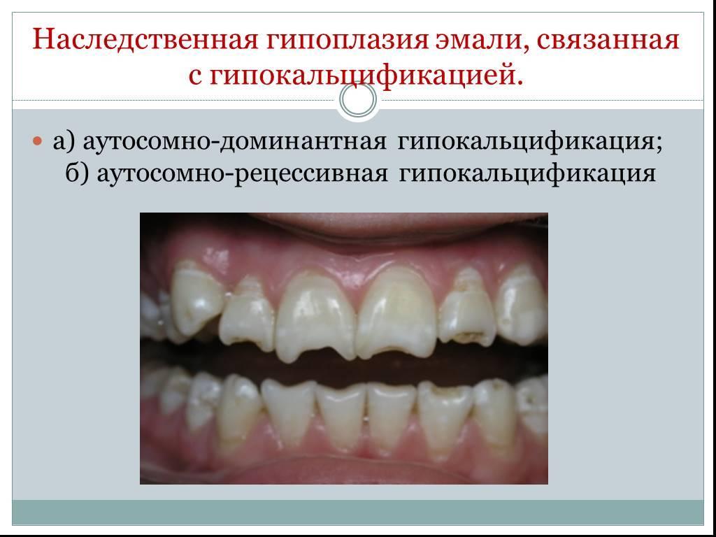 Темная эмаль зубов что делать