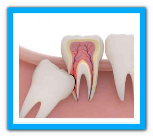 Почему болит горло после удаления зуба, методы лечения