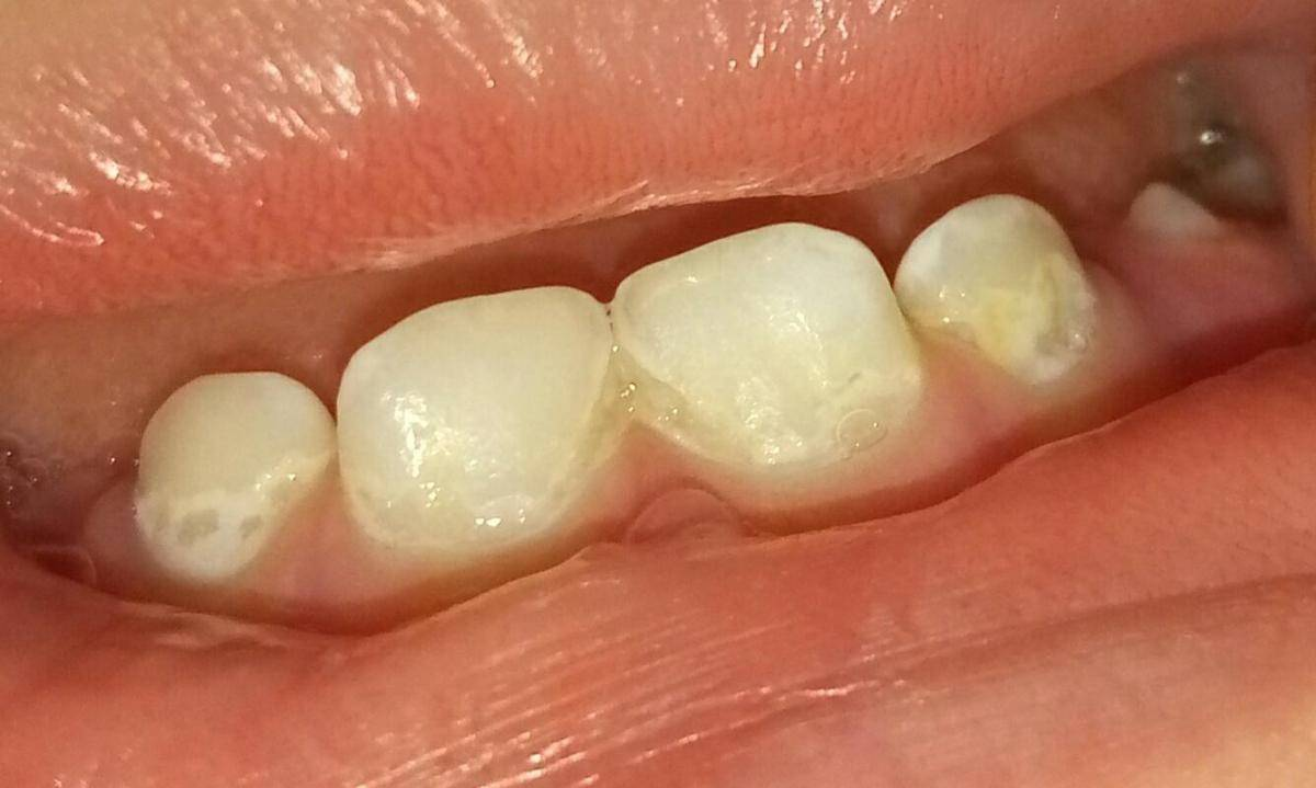 Восстановление разрушенного зуба при оставшемся корне